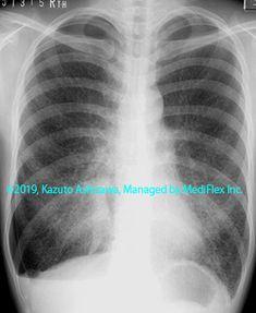 11. その他の肺疾患 症例105:肺リンパ脈管筋腫症 胸部単純X線写真,『コンパクトX線アトラスBasic 胸部単純X線写真アトラス vol.1 肺』