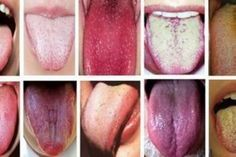 Chinese medicine has been studying the health of the tongue for thousands of years. In fact, knowledge of the tongue comes from Chinese medicine. They describe the health of the tongue through three key factors: color, shape and texture. Healthy Tongue, Tongue Health, Healthy Tips, How To Stay Healthy, Healthy Habits, Home Remedies, Natural Remedies, Chinese Medicine, Japanese Medicine