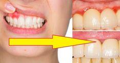 Kiedy można mówić o regresji dziąseł? Wtedy kiedy korzenie zębów stają się widoczne. Ten problem pojawia się z powodu utraty tkanki dziąseł. Pojawia się wtedy dodatkowa przestrzeń między zębami a ... Lipstick, Health, Youtube, Salud, Health Care, Lipsticks, Healthy, Youtube Movies
