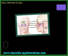 Sinus Infection In Eyes 090818 - Cure Sinusitis