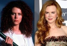 Nicole Kidman has had many Botox procedures, jaw correction, and a nose job