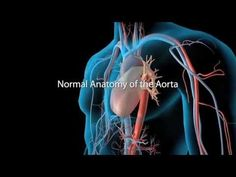 Aortic Aneurysm and Aortic Dissection: Development of Thoracic Aortic Disease