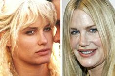 Daryl Hannah is a plastic surgery nightmare. Her botox abuse to hide the wrinkle. - Daryl Hannah is a plastic surgery nightmare. Her botox abuse to hide the wrinkles from her face and forehead has made her look unreal, almost like a puppet. Daryl Hannah, Bad Plastic Surgeries, Plastic Surgery Gone Wrong, The Face, Forehead Lift, Chin Implant, Lip Augmentation, Celebrity Plastic Surgery, Look Alike