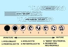 Neutrophil shift chart-actually intended for use by Animal Hospitals. White Blood Cell Count, White Blood Cells, Np School, Microbiology, Medical School, Human Body, Medicine, Science, Chart