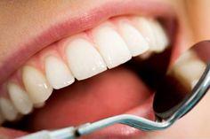 Tiga Siku - Gigi berlubang tidak selalu harus ditambal. Jika memang dokter gigi menyarankan ditambal, harus sesuai diagnosis.