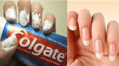 Did you know that toothpaste can help you do so much more than just cleaning your teeth? Continue reading the article below to learn 20 amazing toothpaste tricks! Silver polish Silver cleaning costs a lot, but Grow Nails Faster, How To Grow Nails, Grow Long Nails, Uses For Toothpaste, Tips Belleza, How To Clean Carpet, Healthy Tips, Happy Healthy, Stay Healthy