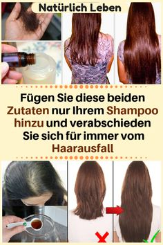Add 2 ingredients to your shampoo and tell your hair loss forever. Simply add them. Hair A, Grow Hair, Your Hair, Homemade Shampoo, Damaged Hair Repair, Prevent Hair Loss, Health And Wellbeing, How To Stay Healthy, Natural Health