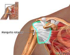 Planes caseros de Fisioterapia: PLAN CASERO SINDROME MANGUITO ROTADOR