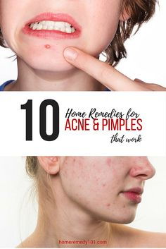 10 Home Remedies for Acne & Pimples that work