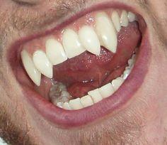 Jynx FX Teeth Hyper Realistic Buck Teeth Pure fun ProFX