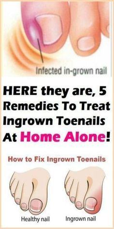 Here they are, 5 Remedies To Treat Ingrown Toenails At Home Alone! - Healthy Lifestyle Tips Healthy Nails, Healthy Skin, Tongue Health, Nail Infection, Natural Disinfectant, Ingrown Toe Nail, Ingrown Toenail Remedies, Striped Nails, Hair And Beauty
