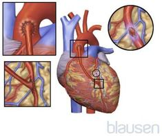 Overview of Coronary Artery Disease (CAD) - Heart and Blood Vessel Disorders - Merck Manuals Consumer Version Causes Of Heart Attack, Prevent Heart Attack, Percutaneous Coronary Intervention, Acute Coronary Syndrome, Merck Manual, Cardiac Catheterization, Myocardial Infarction, Types Of Surgery, Types Of Diseases