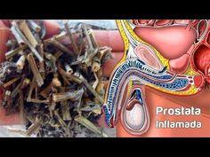 ¿qué sucede cuando tienes una próstata agrandada letra