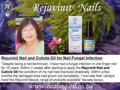 Nail Technicians use Rejuvinit Nails for treating and prevention of nail fungus infections under acrylic and gel nails. Read more www. Fungal Nail Infection Treatment, Fingernail Fungus Treatment, Nail Treatment, Fungus Toenails, Ingrown Toenail Remedies, Ingrown Toe Nail, Nail Cuticle, Fungi