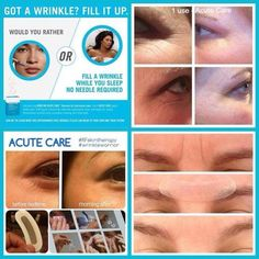 "ACUTE CARE  | - ""Better than Botox""   Learn more: https://www.pinterest.com/ekrodanfields/     Questions/Contact us: http://ekphotovideo.com/ekrodanfields     Order products: https://ekstudios.myrandf.com/     Follow us for deals: https://www.instagram.com/ekrodanfields/ #ekrodanfields #rodanandfields"