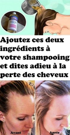 Add these two ingredients to your shampoo and say adi .- Ajoutez ces deux ingrédients à votre shampooing et dites adieu à la perte des… Add these two ingredients to your shampoo and say goodbye to hair loss – - Olaplex Hair Treatment, Salon Hair Treatments, Hair Loss Treatment, Beauty Care, Diy Beauty, Beauty Hacks, Beauty Women, Skin Tag Removal, Beauty Tips For Face