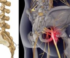 Many  Americans Suffer From Sciatica Pain – Here's HOW To Reverse It!