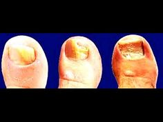How to Get Rid of Toenail Fungus Fast and Naturally at Home. How to Get Rid of Toenail Fungus Fast and Naturally at Home.  To take in more about Funginix visit this page to peruse our exhaustive audit. On the off chance that you might want to utilize a co