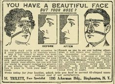 This nose shaper from 1920 25 Health Products Youll Be Glad You Dont See Today