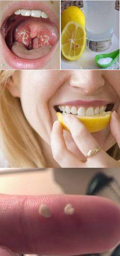 Receita natural para tratar de pedras nas amígdalas e acabar com o mau hálito e mau cheiro bucal!