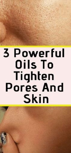 We present you below the 3 powerful essential oils to tighten pores and skin fast without the need skin creams or costly laser treatments. Essential oils have long been used to help treat and cure all kinds of skin conditions including acne, burns, eczema Beauty Care, Beauty Skin, Health And Beauty, Beauty Tips, Beauty Hacks, Diy Beauty, Beauty Products, Face Beauty, Homemade Beauty