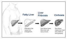 Alcoholic Liver Disease.  (Alcoholism not necessary to develop disorder) Manifested by fatty liver, hepatitis, and cirrhosis.    An accumulation of fat in the liver cells, and caused by more fat being delivered that the hepatocytes can metabolize, or by a defect of fat metabolism within the cell.  Process can be started by obesity, diabetes II, TPN, drugs, etc.  Often diagnosed incidentally.  Nonalcoholic can be managed through weight loss, diabetes control, and treatment for underlying…