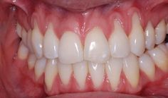 Most people don't know they have gum recession because it occurs gradually. The first sign of gum recession is usually tooth sensitivity and you may notice a tooth looks longer than normal. Gum recession is where part of the gum tissue that surrounds Natural Home Remedies, Natural Healing, Herbal Remedies, Health Remedies, Holistic Remedies, Gum Health, Dental Health, Dental Care, Oral Health