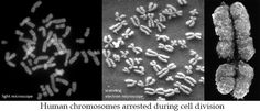 dna squiggles that make up chromosomes