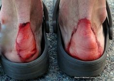 6 PRO TIPS FOR AVOIDING BLISTERS when walking, hiking, backpacking, etc. - tips and image by Michael Lanza | The big outside