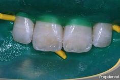 #reconstrucción #dental