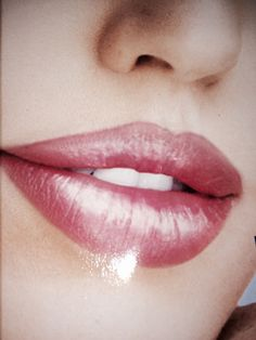 LABIOS SEXYS con Implantes Faciales,  relleno de larga duración
