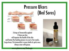 a decubitus ulcer also called a pressure sore or bed sore is an open