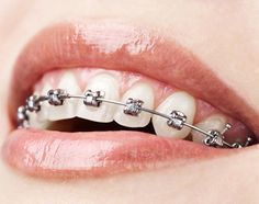 Makeup tips for those who wear Braces