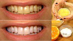 Natural Teeth Whitening Remedies Teeth Whitening At Home For Yellow Teeth – Works Best Teeth Whitening Kit, Teeth Whitening Remedies, Natural Teeth Whitening, Tooth Sensitivity, Teeth Bleaching, Teeth Care, Medical Prescription, Oral Health, Orange Juice