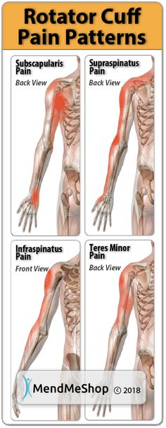 ROTATOR CUFF Patterns: Pain patterns associated with rotator cuff tendon injury vary depending on the tendon. Generally the pain can be deep within your shoulder and radiate down your arm, right to your hand. Shoulder Rehab, Shoulder Problem, Frozen Shoulder, Medical, Massage Techniques, Trigger Points, Occupational Therapy, Orthopedic Physical Therapy, Massage Therapy