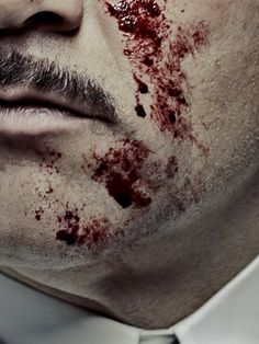 Cinemax is presenting Steven Soderbergh's 'The Knick,' a medical drama about the origins of modern surgery -- the blood, gore, and the thrill of the those early days. Hot Doctor, The Knick, Laugh Track, City Hospital, Clive Owen, Tv Series To Watch, Medical Drama, Gold Face, The Revenant