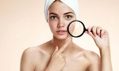 Tips: How to Get Rid of Pimples Got acne? Learn the different types of acne and the treatments on Dr.Got acne? Learn the different types of acne and the treatments on Dr. Cystic Acne Treatment, Natural Acne Treatment, Natural Acne Remedies, Home Remedies For Acne, Acne Treatments, Scar Treatment, Natural Cures, Acne And Pimples, Hair Loss