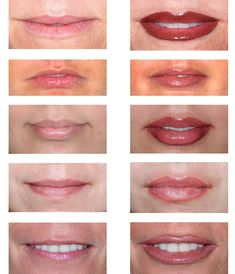 Before & After- Permanent Lip Makeup                                                                                                                                                                                 More