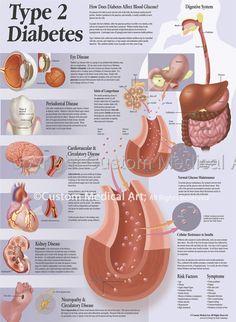 Illustration-Custom Medical Art: Type 2 Diabetes Patient Education Poster