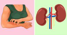 Sağlıklı bir vücut için sağlıklı bir böbrek şarttır. Böbrekler, vücuttaki zararlı atıkları filtreler. Böbrekleriniz sağlıklı değilse ileride böbrek yetmezliğiyle karşılaşabilirsiniz. Böbreklerimizde sorun olduğunu anlamak güç olabilir. Vücudumuzdaki belirtilere dikkat etmememiz gerekiyor. Y Rheumatische Arthritis, Diabetes, Fett, Health, Tricks, Flora, Places, Food, Natural Antibiotics
