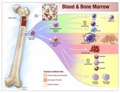 Chronic lymphocytic leukemia is a cancer of the blood and the spongy tissue inside bones where blood cells are made, called bone marrow.