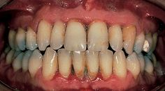 Common Mouth Issues: Periodontitis Read an ADA article on the common mouth issues.