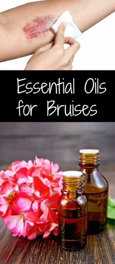 We all suffer from bruises from time to time, but you shouldn't just sit around and wait for the bruises to pass. Let's see how essential oils help those unseemly bruises.