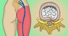 How to Release the Pinched Nerve in Your Lumbar Area (Sciatica): 2 Simple Ways of Getting Rid of the Pain!How to Release the Pinched Nerve in Your Lumbar Area (Sciatica): 2 Simple Ways of Getting Rid of the Pain! Sciatica Pain Relief, Sciatic Pain, Sciatic Nerve, Nerve Pain, Back Pain Relief, Severe Sciatica, Lumbar Pain, Intervertebral Disc, Degenerative Disc Disease