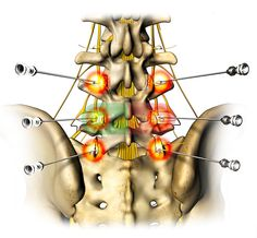 Burning Nerves in Lower Back | single posterior view of the low back, pelvic bones and spinal nerves ...