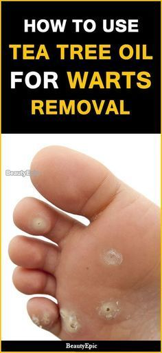 how to remove warts with tea tree oil essential oils tea tree rh pinterest com
