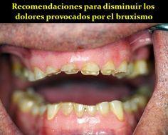 Recomendaciones para disminuir los dolores provocados por el bruxismo | OdontoFarma