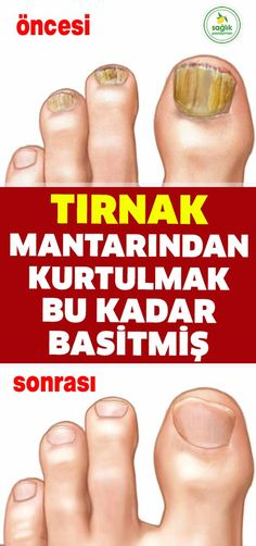 Bu baharatın şimdiye kadar birçok faydasını anlattık ama şimdiki faydası… We have described many benefits of this spice so far, but the current benefit is related to nail fungus. Almost one in two people to remove the nail fungus was… Continue Reading → Natural Teething Remedies, Natural Remedies, Get Rid Of Warts, Nail Fungus, Health Advice, Natural Medicine, Diet And Nutrition, Herbal Remedies, Fungi