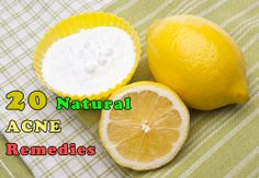 20 Acne Home Remedies Divided by Skin Type