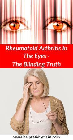 # ra symptoms rheumatoid arthritis Rheumatoid Arthritis In The Eyes Rheumatoid Arthritis Causes, Arthritis Relief, Ra Symptoms, Disease Symptoms, Body Tissues, Muscle Pain, Sciatica, Autoimmune Disease, Health Remedies